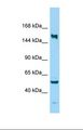 KIF24 Antibody - Western blot of Human MDA-MB-435S. KIF24 antibody dilution 1.0 ug/ml.  This image was taken for the unconjugated form of this product. Other forms have not been tested.