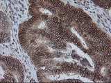 IHC of paraffin-embedded Adenocarcinoma of Human colon tissue using anti-KIF25 mouse monoclonal antibody. (Heat-induced epitope retrieval by 10mM citric buffer, pH6.0, 100C for 10min).