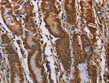 Immunohistochemistry of Human gastric cancer using KIF2A Polyclonal Antibody at dilution of 1:70.