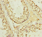 KIFC3 Antibody - Immunohistochemistry of paraffin-embedded human testis tissue at dilution of 1:100