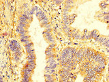KIR2DL1 / CD158a Antibody - Immunohistochemistry image at a dilution of 1:400 and staining in paraffin-embedded human colon cancer performed on a Leica BondTM system. After dewaxing and hydration, antigen retrieval was mediated by high pressure in a citrate buffer (pH 6.0) . Section was blocked with 10% normal goat serum 30min at RT. Then primary antibody (1% BSA) was incubated at 4 °C overnight. The primary is detected by a biotinylated secondary antibody and visualized using an HRP conjugated SP system.