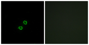 Immunofluorescence analysis of A549 cells, using KIR2DL5B Antibody. The picture on the right is blocked with the synthesized peptide.