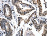 Immunohistochemistry of paraffin-embedded Human colon cancer using KLK7 Polyclonal Antibody at dilution of 1:10.