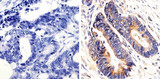 KRAS Antibody - IHC (P) using K-Ras Antibody (9.13) showing staining in the cytoplasm of paraffin-embedded human colon carcinoma (right) compared to a negative control without primary antibody (left).