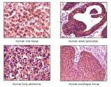 IHC analysis of FFPE liver tissue, colon carcinoma, lung carcinoma, and esophagus using DAB staining