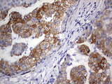 IHC of paraffin-embedded Carcinoma of Human liver tissue using anti-KRT24 mouse monoclonal antibody. (Heat-induced epitope retrieval by 1 mM EDTA in 10mM Tris, pH9.0, 120°C for 3min).