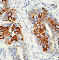 KRT8 / CK8 / Cytokeratin 8 Antibody - Formalin-fixed, paraffin-embedded human breast carcinoma stained with peroxidase-conjugate and DAB chromogen. Note cytoplasmic staining of tumor cells.  This image was taken for the unmodified form of this product. Other forms have not been tested.