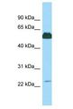 KRT85 / Keratin 85 / KRTHB5 Antibody - KRT85 antibody Western Blot of 721_B. Antibody dilution: 1 ug/ml.  This image was taken for the unconjugated form of this product. Other forms have not been tested.