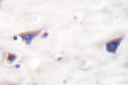 KSR1 Antibody - IHC of KSR (R386)pAb in paraffin-embedded human brain tissue.