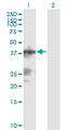 Western blot of C13orf31 expression in transfected 293T cell line by C13orf31 monoclonal antibody (M04), clone 2A1.