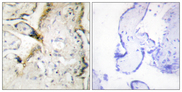 Immunohistochemistry analysis of paraffin-embedded human placenta tissue, using LAMA2 Antibody. The picture on the right is blocked with the synthesized peptide.