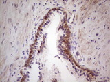 LAMA4 / Laminin Alpha 4 Antibody - IHC of paraffin-embedded Human prostate tissue using anti-LAMA4 mouse monoclonal antibody. (heat-induced epitope retrieval by 1 mM EDTA in 10mM Tris, pH8.5, 120°C for 3min).