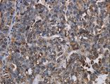 Immunohistochemistry of Human ovarian cancer using LBR Polyclonal Antibody at dilution of 1:50.