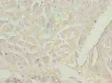 Immunohistochemistry of paraffin-embedded human heart tissue using antibody at dilution of 1:100.