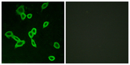 Immunofluorescence analysis of LOVO cells, using LGR6 Antibody. The picture on the right is blocked with the synthesized peptide.