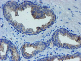 IHC of paraffin-embedded Carcinoma of Human prostate tissue using anti-LHX1 mouse monoclonal antibody. (Heat-induced epitope retrieval by 10mM citric buffer, pH6.0, 100C for 10min).