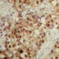 LONP2 / LONP Antibody - Immunohistochemical analysis of LONP2 staining in human breast cancer formalin fixed paraffin embedded tissue section. The section was pre-treated using heat mediated antigen retrieval with sodium citrate buffer (pH 6.0). The section was then incubated with the antibody at room temperature and detected with HRP and DAB as chromogen. The section was then counterstained with hematoxylin and mounted with DPX.