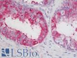 Anti-LOXL2 antibody IHC staining of human prostate. Immunohistochemistry of formalin-fixed, paraffin-embedded tissue after heat-induced antigen retrieval. Antibody LS-B11395 concentration 5 ug/ml.