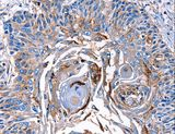 LRP2 / Megalin Antibody - Immunohistochemistry of paraffin-embedded Human esophagus cancer using LRP2 Polyclonal Antibody at dilution of 1:40.