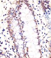 LSM2 / SnRNP Antibody - Antibody staining LSM2 in human colon tissue sections by Immunohistochemistry (IHC-P - paraformaldehyde-fixed, paraffin-embedded sections). Tissue was fixed with formaldehyde and blocked with 3% BSA for 0. 5 hour at room temperature; antigen retrieval was by heat mediation with a citrate buffer (pH 6). Samples were incubated with primary antibody (1:25) for 1 hours at 37°C. A undiluted biotinylated goat polyvalent antibody was used as the secondary antibody.