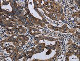Immunohistochemistry of Human gastric cancer using LZTFL1 Polyclonal Antibody at dilution of 1:50.