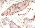 Formalin-fixed, paraffin-embedded human testicular carcinoma stained with MAGE-1 antibody (MZ2E/838).  This image was taken for the unmodified form of this product. Other forms have not been tested.