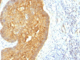 IHC testing of FFPE human skin with acidic Cytokeratin antibody (clone KRTL/1377). Staining of FFPE tissue requires boiling sections in 10mM citrate buffer, pH6, for 10-20 min followed by cooling at RT for 20 min.