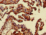 MAN2A1 / Mannosidase II Antibody - Immunohistochemistry of paraffin-embedded human lung cancer at dilution of 1:100