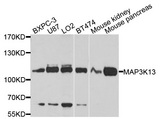 Western blot analysis of extracts of various cell lines, using MAP3K13 antibody at 1:1000 dilution. The secondary antibody used was an HRP Goat Anti-Rabbit IgG (H+L) at 1:10000 dilution. Lysates were loaded 25ug per lane and 3% nonfat dry milk in TBST was used for blocking. An ECL Kit was used for detection and the exposure time was 10s.