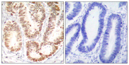 Immunohistochemistry analysis of paraffin-embedded human colon carcinoma, using p38 MAPK (Phospho-Tyr182) Antibody. The picture on the right is blocked with the phospho peptide.