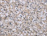 Immunohistochemistry of Human prostate cancer using MAPRE3 Polyclonal Antibody at dilution of 1:20.