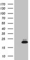 MDK / Midkine Antibody - HEK293T cells were transfected with the pCMV6-ENTRY control (Left lane) or pCMV6-ENTRY MDK (Right lane) cDNA for 48 hrs and lysed. Equivalent amounts of cell lysates (5 ug per lane) were separated by SDS-PAGE and immunoblotted with anti-MDK (1:2000).