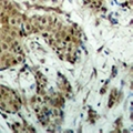MECOM / EVI1 Antibody - Immunohistochemical analysis of EVI1 staining in human breast cancer formalin fixed paraffin embedded tissue section. The section was pre-treated using heat mediated antigen retrieval with sodium citrate buffer (pH 6.0). The section was then incubated with the antibody at room temperature and detected using an HRP conjugated compact polymer system. DAB was used as the chromogen. The section was then counterstained with hematoxylin and mounted with DPX.