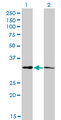 Western blot of CRSP8 expression in transfected 293T cell line by CRSP8 monoclonal antibody (M01), clone 8B8.