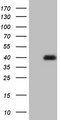 HEK293T cells were transfected with the pCMV6-ENTRY control (Left lane) or pCMV6-ENTRY MEOX1 (Right lane) cDNA for 48 hrs and lysed. Equivalent amounts of cell lysates (5 ug per lane) were separated by SDS-PAGE and immunoblotted with anti-MEOX1.