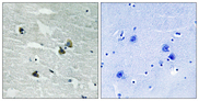 MER / MERTK Antibody - Immunohistochemistry analysis of paraffin-embedded human brain, using MER/SKY (Phospho-Tyr749/681) Antibody. The picture on the right is blocked with the phospho peptide.