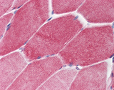 Methionine Antibody - Skeletal muscle: Formalin-fixed, paraffinembedded