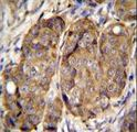 METTL2 Antibody immunohistochemistry of formalin-fixed and paraffin-embedded human breast carcinoma followed by peroxidase-conjugated secondary antibody and DAB staining.