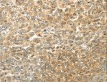 Immunohistochemistry of Human ovarian cancer using MGEA5 Polyclonal Antibody at dilution of 1:20.