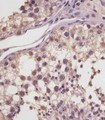 MGEA5 Antibody (N-Term) staining MGEA5 in human testis tissue sections by Immunohistochemistry (IHC-P - paraformaldehyde-fixed, paraffin-embedded sections). Tissue was fixed with formaldehyde and blocked with 3% BSA for 0. 5 hour at room temperature; antigen retrieval was by heat mediation with a citrate buffer (pH6). Samples were incubated with primary antibody (1/25) for 1 hours at 37°C. A undiluted biotinylated goat polyvalent antibody was used as the secondary antibody.