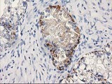 IHC of paraffin-embedded Adenocarcinoma of Human ovary tissue using anti-MGLL mouse monoclonal antibody.