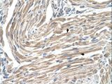 MGST2 Antibody - MGST2 antibody MGST2(microsomal glutathione S-transferase 2) Antibody was used in IHC to stain formalin-fixed, paraffin-embedded human muscle.  This image was taken for the unconjugated form of this product. Other forms have not been tested.