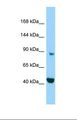 MICAL2 Antibody - Western blot of Human HepG2. MICAL2 antibody dilution 1.0 ug/ml.  This image was taken for the unconjugated form of this product. Other forms have not been tested.