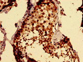 MKRN2 Antibody - Immunohistochemistry image of paraffin-embedded human testis tissue at a dilution of 1:100