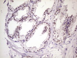 IHC of paraffin-embedded Carcinoma of Human prostate tissue using anti-MKX mouse monoclonal antibody. (Heat-induced epitope retrieval by 1 mM EDTA in 10mM Tris, pH8.5, 120°C for 3min)(1:150).