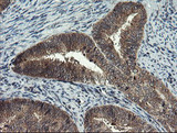 IHC of paraffin-embedded Adenocarcinoma of Human endometrium tissue using anti-MLF1 mouse monoclonal antibody.