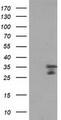HEK293T cells were transfected with the pCMV6-ENTRY control (Left lane) or pCMV6-ENTRY MLF2 (Right lane) cDNA for 48 hrs and lysed. Equivalent amounts of cell lysates (5 ug per lane) were separated by SDS-PAGE and immunoblotted with anti-MLF2.
