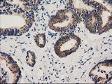 MMAB Antibody - IHC of paraffin-embedded Carcinoma of Human prostate tissue using anti-MMAB mouse monoclonal antibody. (Heat-induced epitope retrieval by 10mM citric buffer, pH6.0, 100C for 10min).