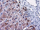MMAB Antibody - IHC of paraffin-embedded Human Ovary tissue using anti-MMAB mouse monoclonal antibody. (Heat-induced epitope retrieval by 10mM citric buffer, pH6.0, 100C for 10min).
