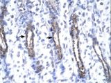 MMP19 Antibody - Human Urinary bladder.  This image was taken for the unconjugated form of this product. Other forms have not been tested.